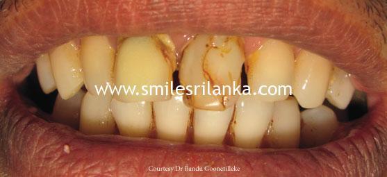 Before Dental Image