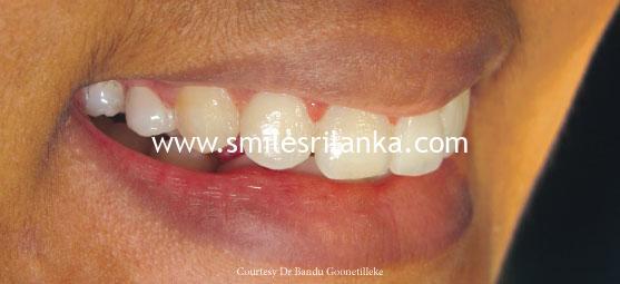 After Dental Image